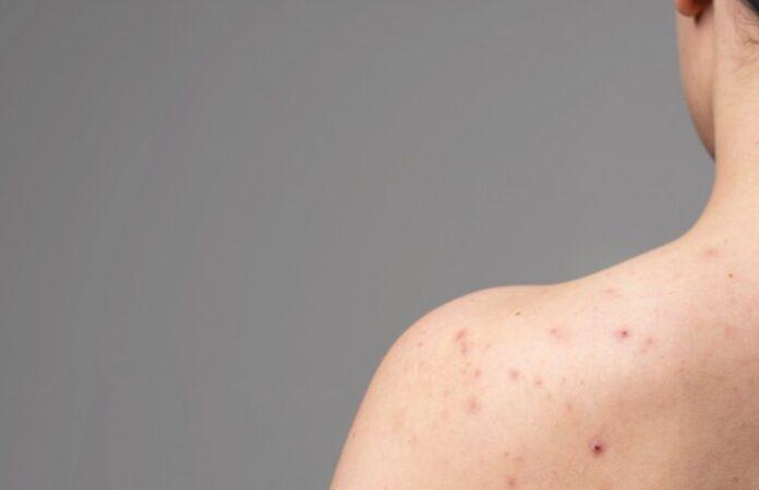 Piqûre punaise de lit : Symptômes et astuces pour la soulager